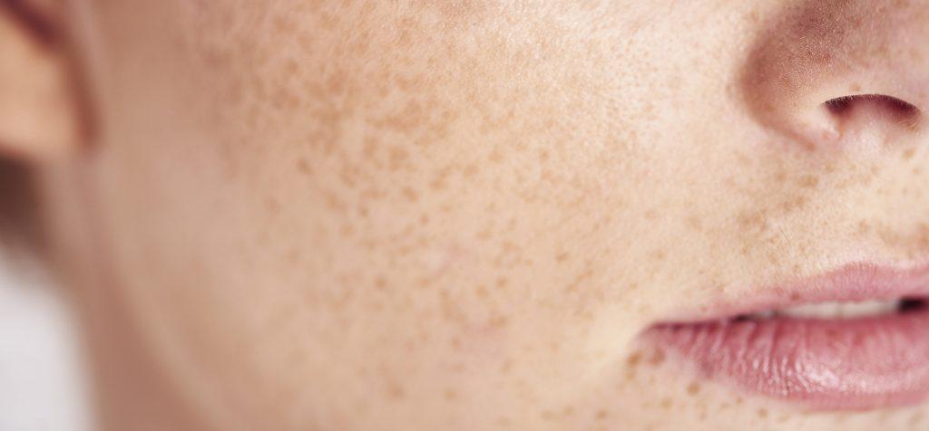Skin Fasting